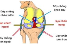 Phục Hồi Chức Năng Dây Chằng Chéo Sau – Tập Vật Lý Trị Liệu Sau phẫu thuật dây chằng chéo sau