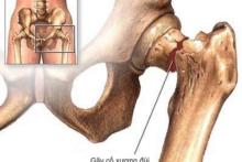 Tập Vật Lý Trị Liệu Sau Khi Thay Khớp Háng (cổ xương đùi)sau phẫu thuật
