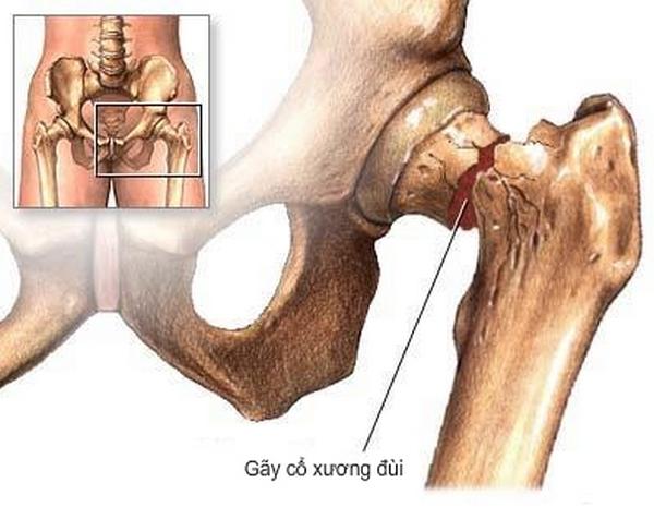 Dịch vụ tập vật lý trị liệu tại nhà ) - Phục hồi chức năng - tập vật lý trị liệu sau thay khớp háng (cổ xương đùi) sau phẫu thuật :