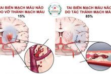Định Nghĩa Nguyên Nhân Gây Nên Tai Biến Mạch Máu Não
