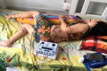 Dịch Vụ Châm Cứu Tại Nhà Cho Bệnh Nhân Tai Biến Mạch Máu Não
