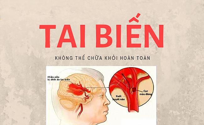 benh tai bien mach mau nao co chua duoc khong
